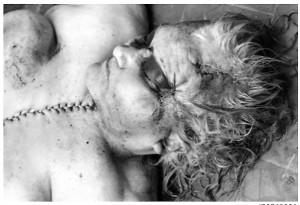 Sumgait-cadaver mujer _1_1988